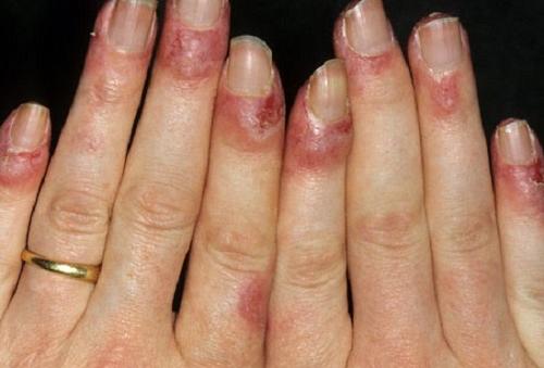 3 cách chữa bệnh cước chân tay vào mùa đông hiệu quả nhất